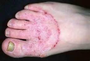 Foot Fungus Treatment